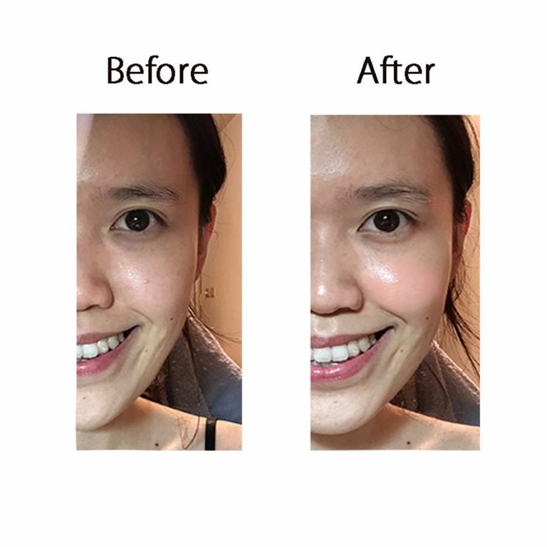 使用CurrentBody Skin LED光療面膜美容儀的前後對比