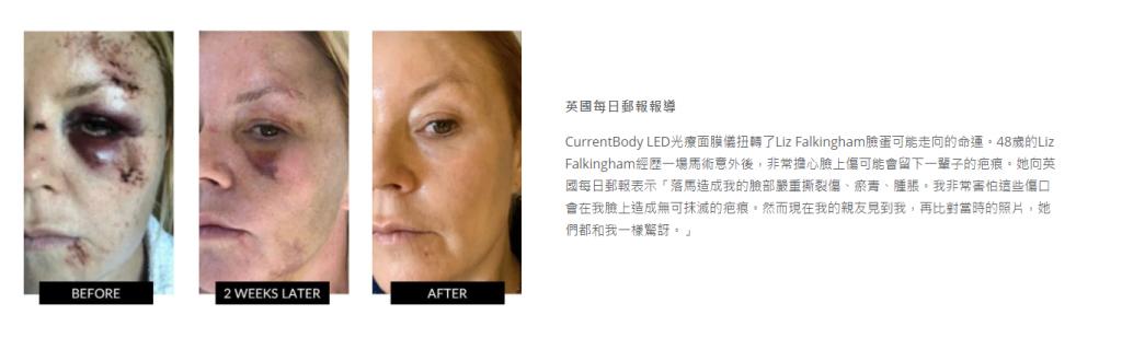 CurrentBody LED光療面膜美容儀使用前後比較圖